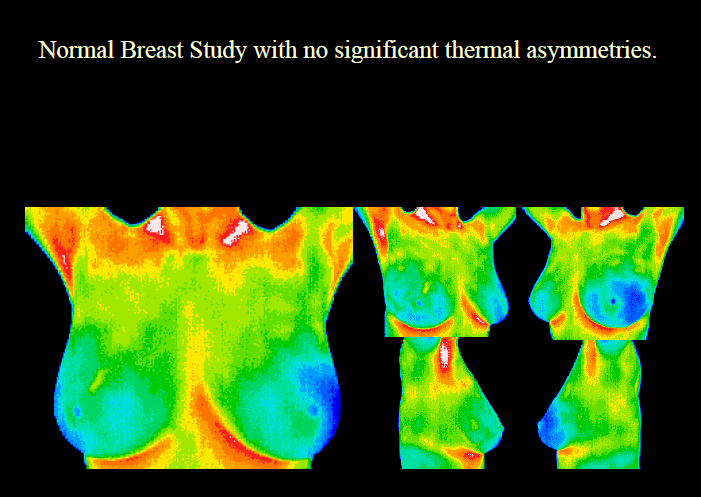 Breast Thermography  The below image is a normal breast study, with no significant thermal asymmetries.  (Early detection of breast disease with no radiation)